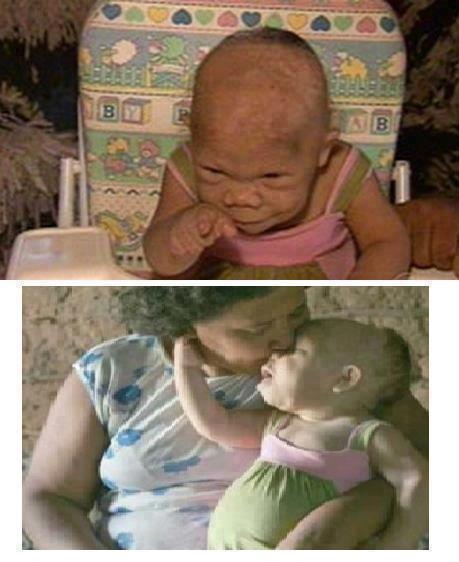 امرأة برازيلية عمرها 30 عاما وتبدو كأنها ذات 9 أشهر